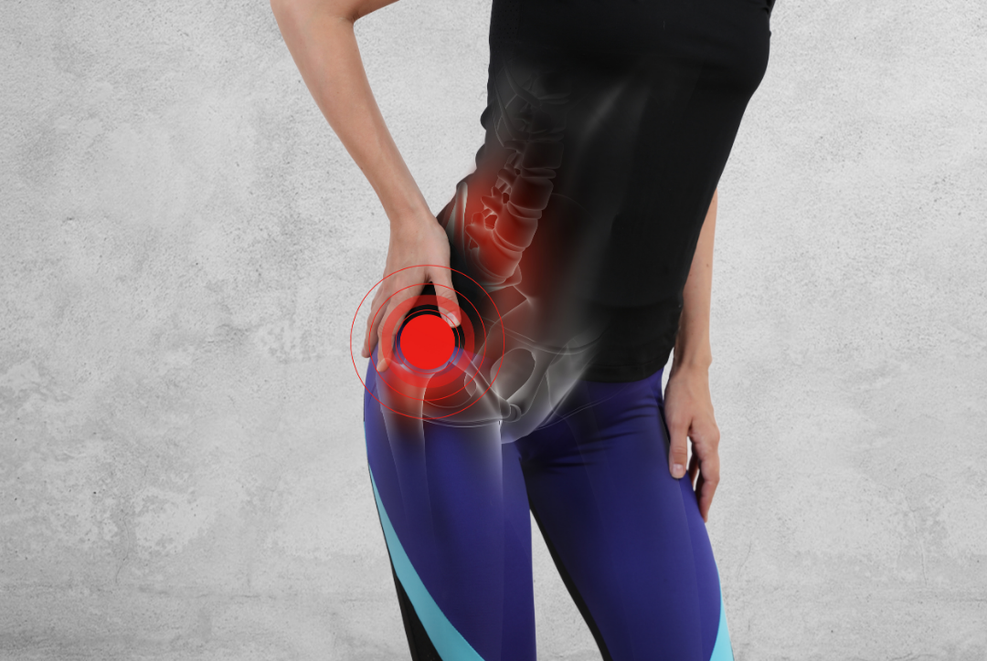 "Why you'll never recover from hip ""bursitis"""